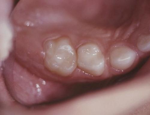 """Le sabbiatrici nello studio dentistico sono una vera """"bomba"""" per i pazienti"""